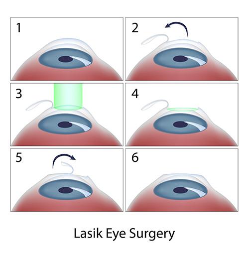 Chart Showing the LASIK Surgery Process